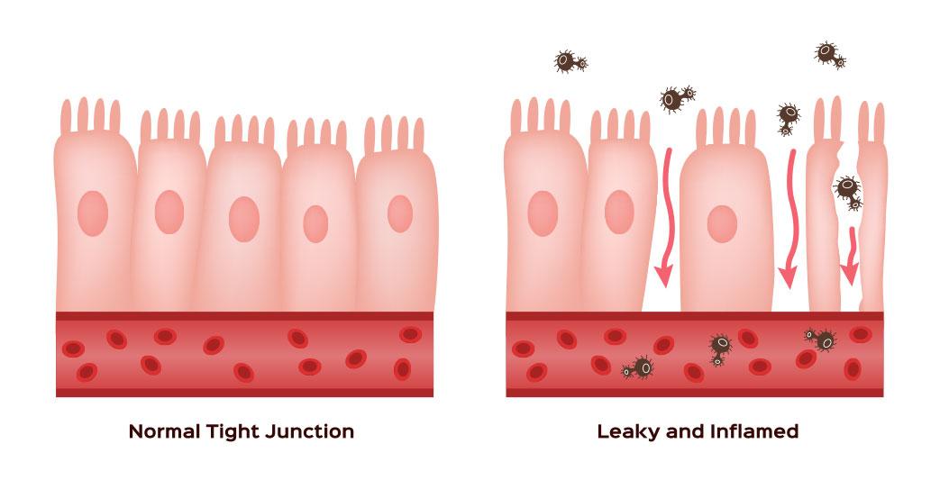 rappresentazione stato permeabilità intestinale